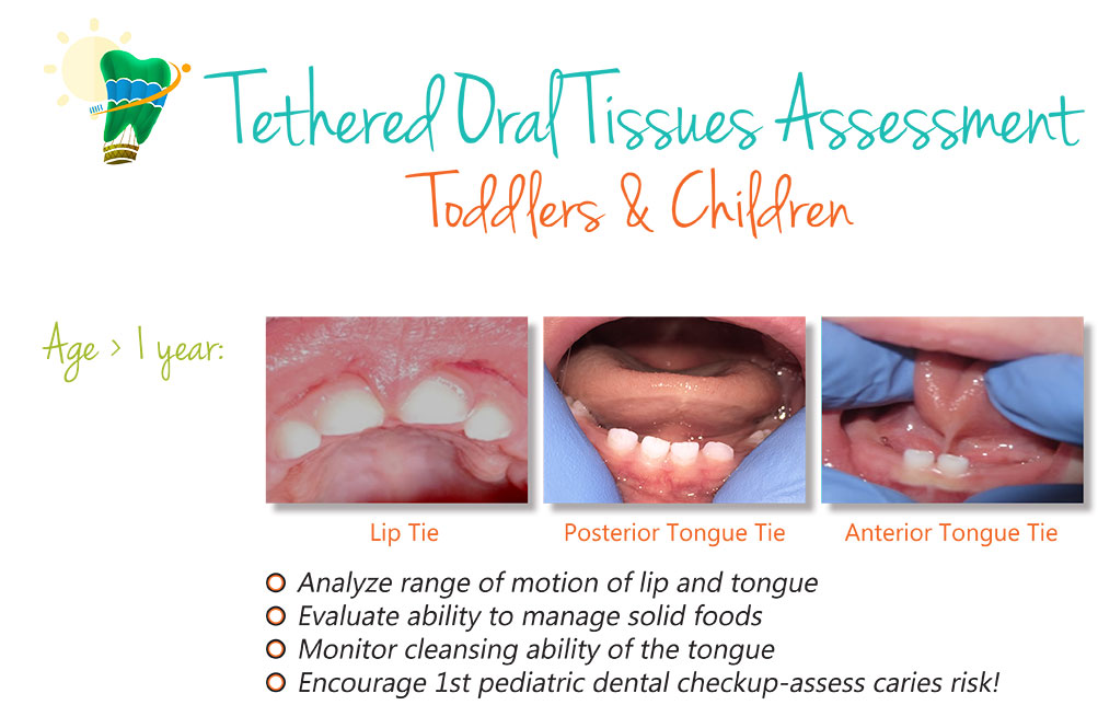Child-Frenectomy-Graphic-Pg-1