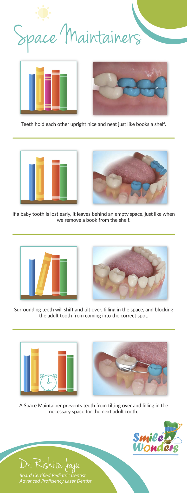 Pediatric dental services pediatric dentist reston va smile the permanent tooth comes in to fill it this appliance will help your childs bite develop properly and hopefully avoid the need for braces later on solutioingenieria Gallery